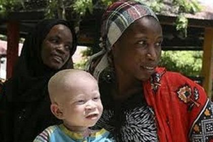 Bambini albini in Africa
