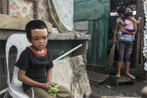 news filippine: bambini e malattie